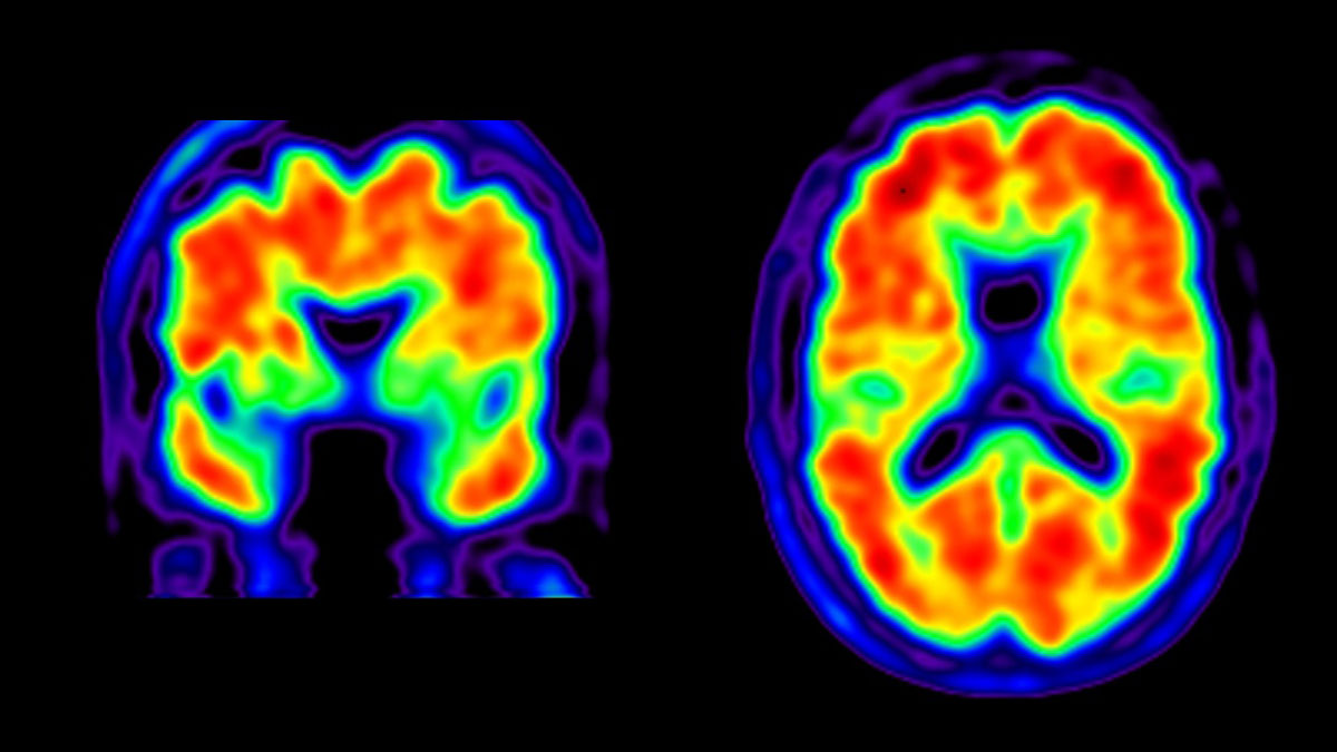 The FDA Has Approved the First New Alzheimer's Disease Treatment in 20 Years